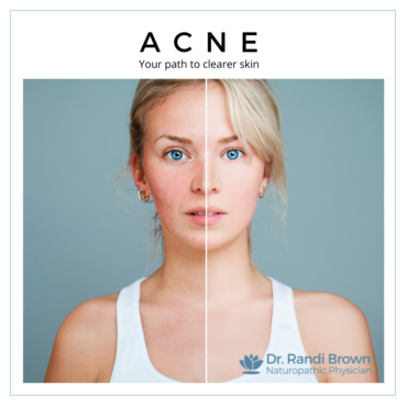 Acne Vulgaris – Your Path to Clearer Skin